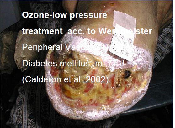 العلاج بالاوكسجين